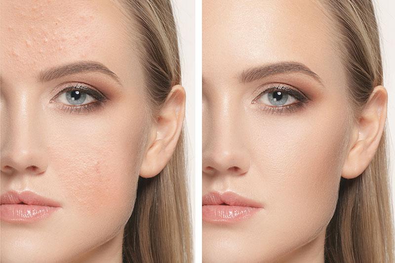 Kosmetik-vorher-nachher-Behandlung